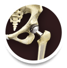 hip_joint_replacement