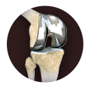 banner_knee_joint_replacement_img