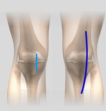 Minimally Invasive Hip Replacement Incisions